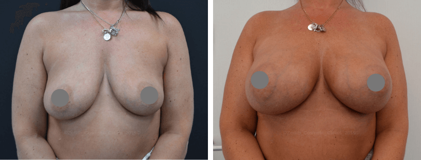 Breast Enlargement | Zenith Cosmetic Clinics