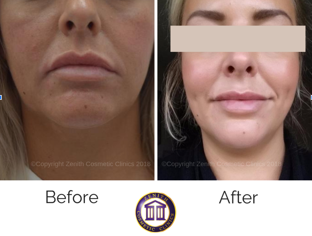Dimple Creation Surgery UK (Dimpleplasty) | Zenith Cosmetic Clinic