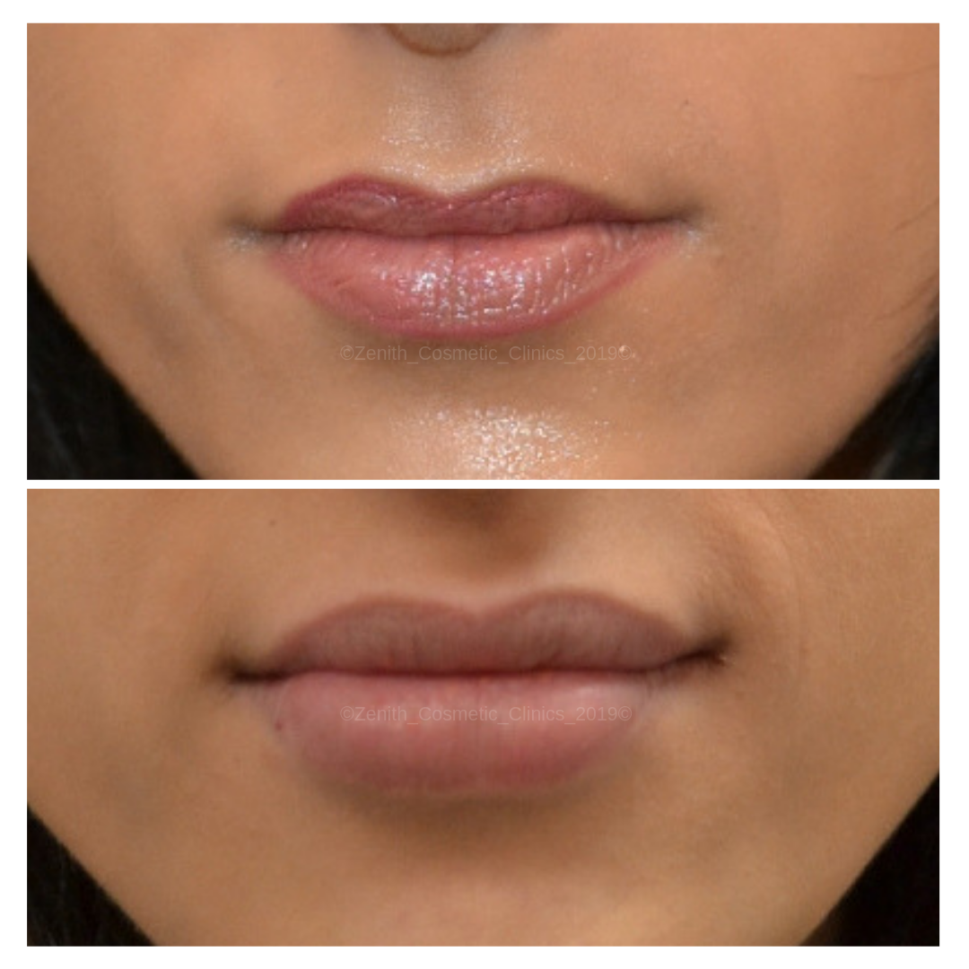 Lip Enhancing Fillers | Lip Injections | Zenith Cosmetic Clinics