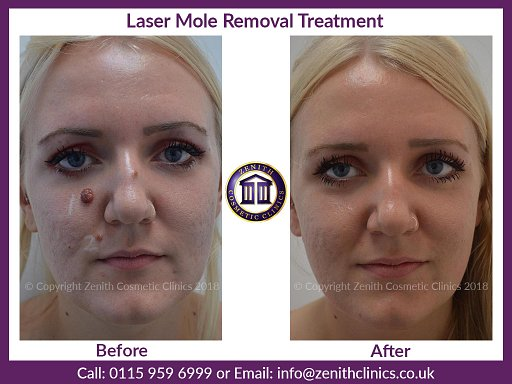 Mole Removal Treatment at Zenith Cosmetic Clinics Nottingham