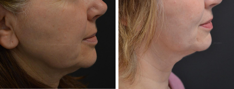 NeckTite™ (Non-Surgical Neck Lift) | Zenith Cosmetic Clinic