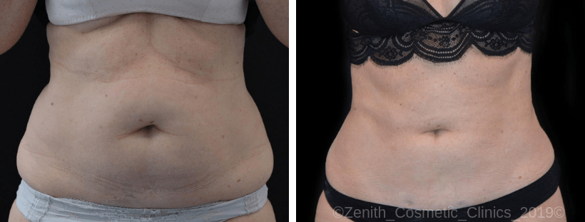 BodyTite Treatment at Zenith Cosmetic Clinics Nottingham