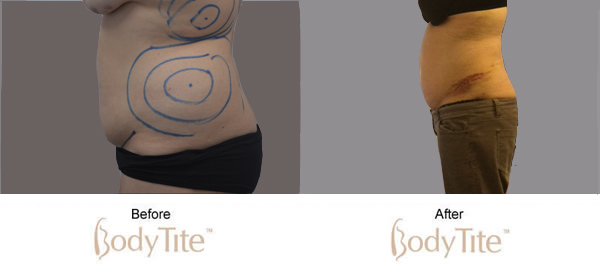 Vaser Lipo and Bodytite: Revolutionary Treatments for your New Years' Resolutions
