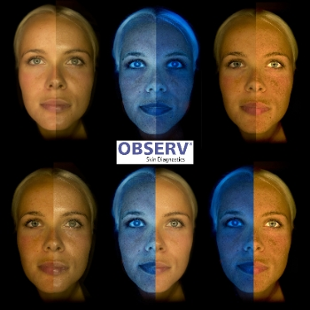 Observ Skin Analysis