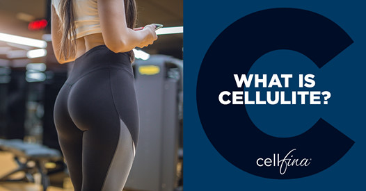 The Best Treatment for Cellulite