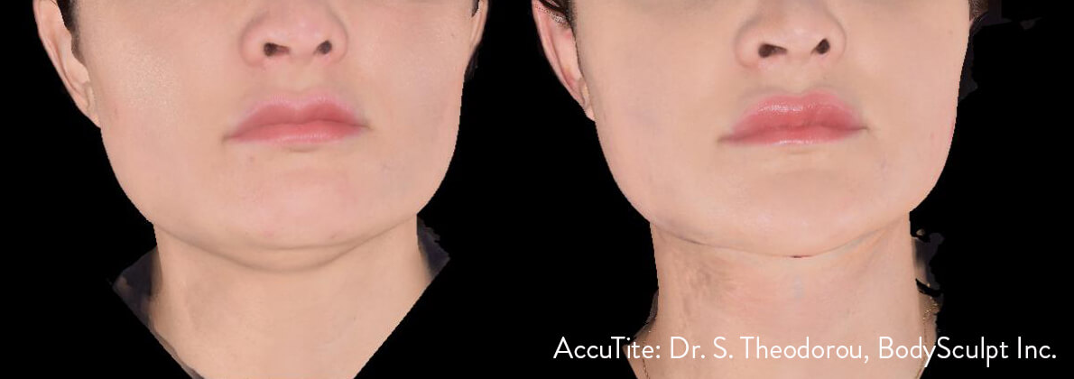 What Is AccuTite?