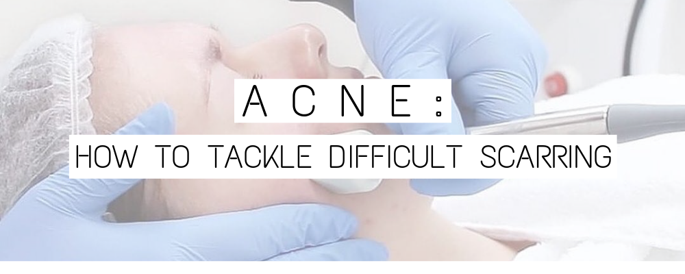 Acne: How to tackle difficult scarring