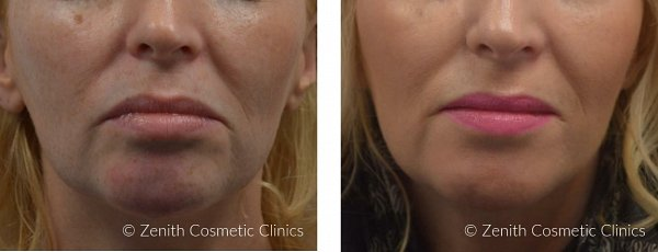 Before/After Juvéderm® VOLUMA®