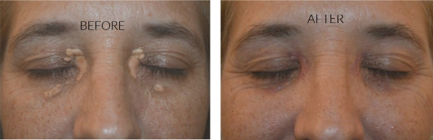 Summary -> Xanthelasma Removal Surgery Xanthelasma Treatment