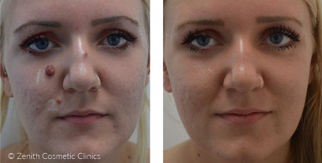 Facial mol removal