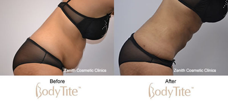 BodyTite™ Gallery | Before & After | Zenith Cosmetic Clinics