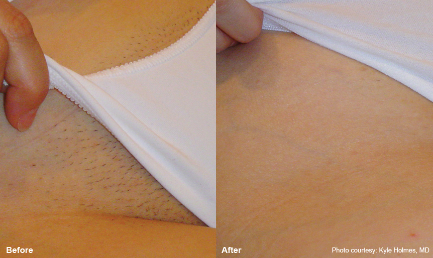 For bikini waxes laser removal