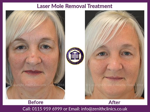 Laser Mole Removal Treatment at Zenith Cosmetic Clinics Nottingham