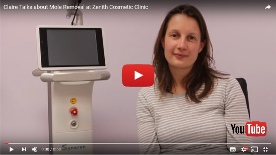 Mole Removal at Zenith Cosmetic Clinics