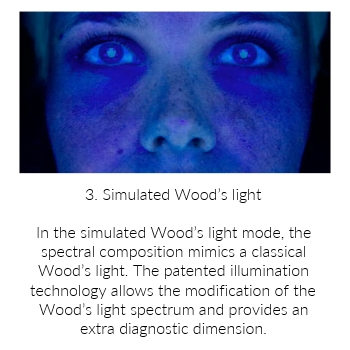Simulated Wood's Light