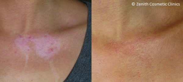 ReCell® Skin Reconstruction | Scars & Burns