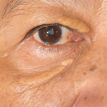 Xanthelasma Removal reviews