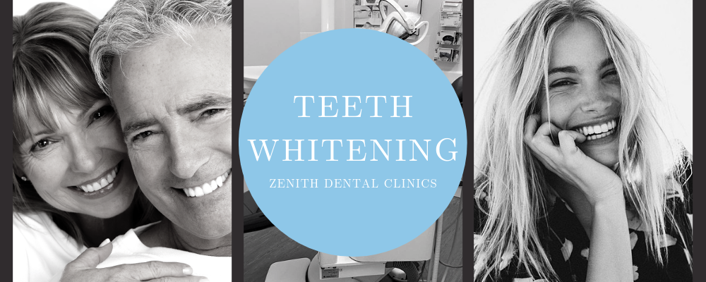 Our Dental Surgeon tells us all about Teeth Whitening!