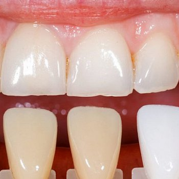DENTAL VENEERS & BONDING